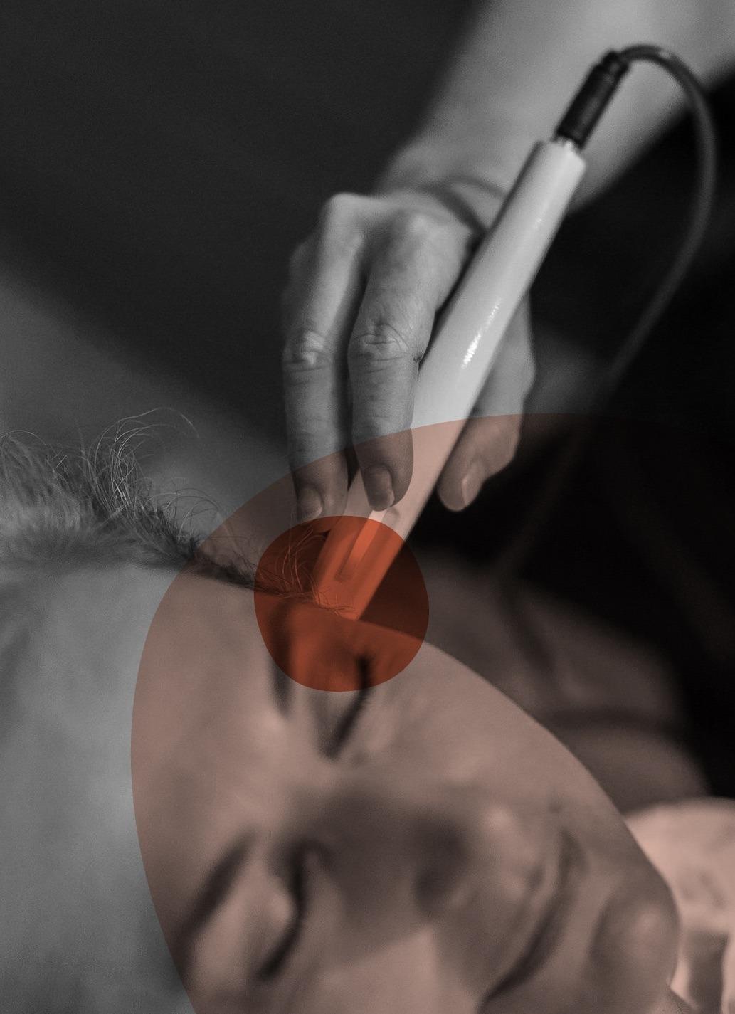 photo en noir et blanc d'une main tenant l'appareil Luxoscreen, posé sur la tempe d'une femme
